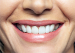 Smile Makeover with Cosmetic Dentistry