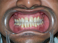 After treatment on GUMS