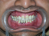 Before treatment on GUMS